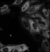 Advanced Pipeline CellProfiler Human Cytoplasm-Nucleus Translocation Assay Illumination example