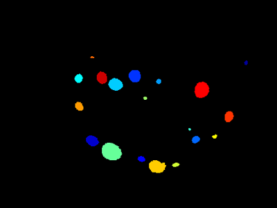 Basic Cellprofiler pipeline mouse lung Tumor Cell Example - segmented